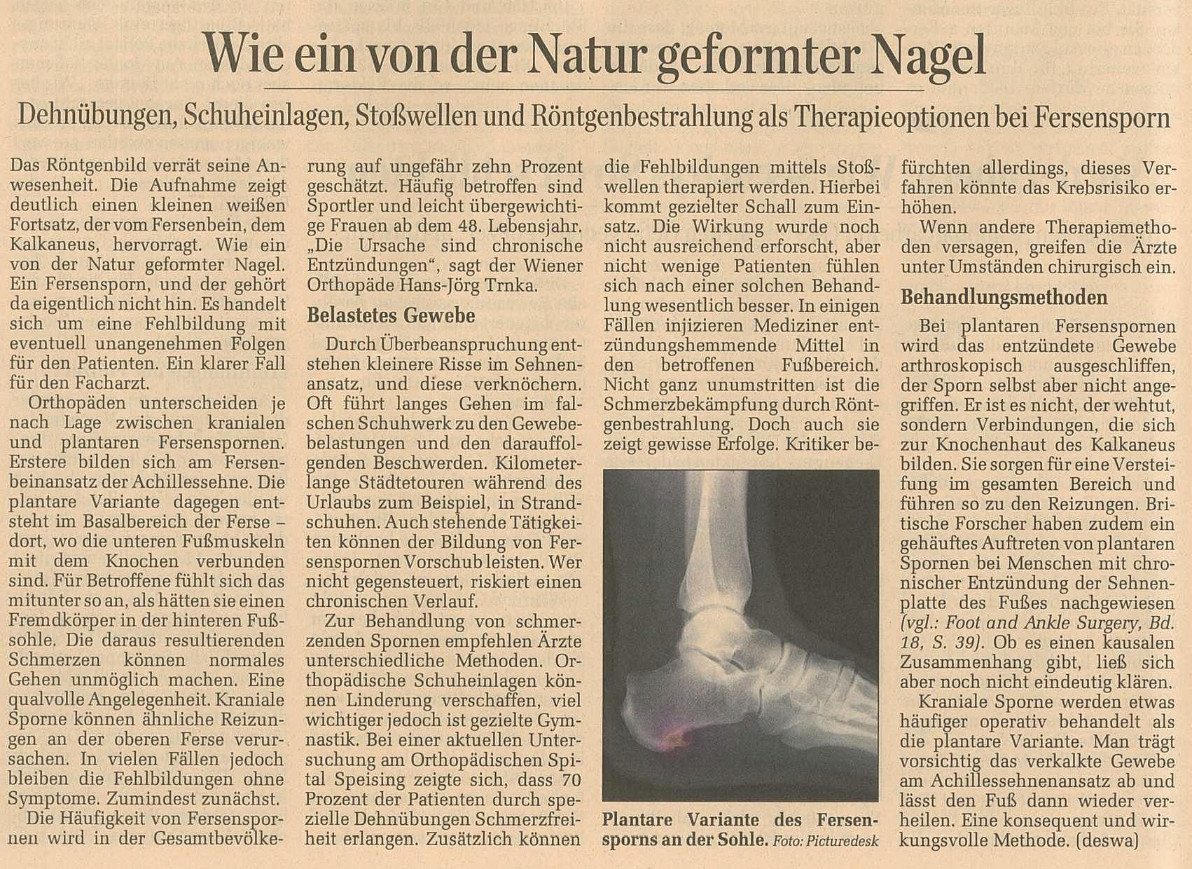 """""""Wie ein von der Natur geformter Nagel!"""